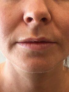 lèvres avant volume