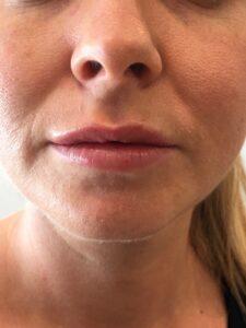 lèvres après volume naturel