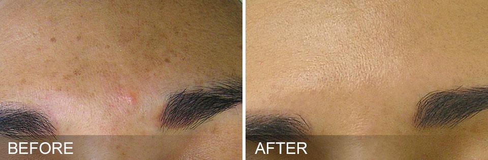 Hydrafacial traitement des taches brunes : avant /après hydrafacial